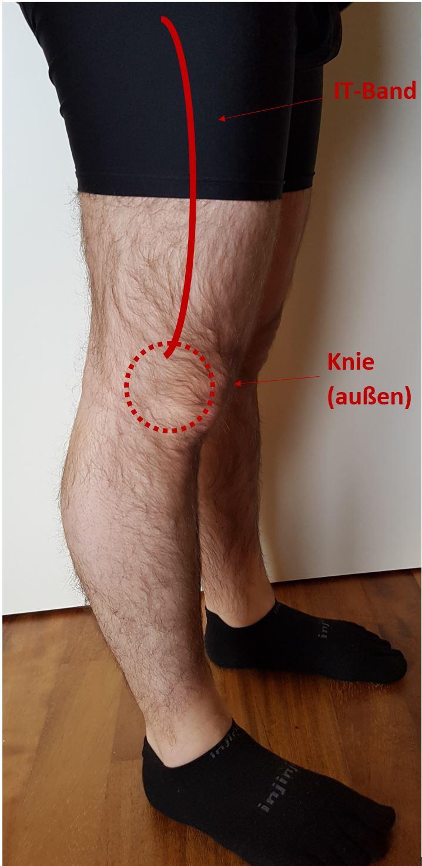 Anatomie Läuferknie